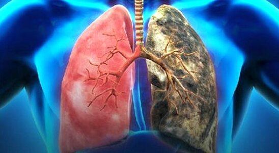 Rak oskrzela/płuca