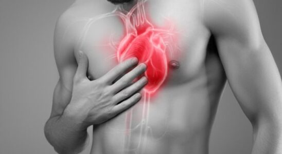 Tętniak aorty